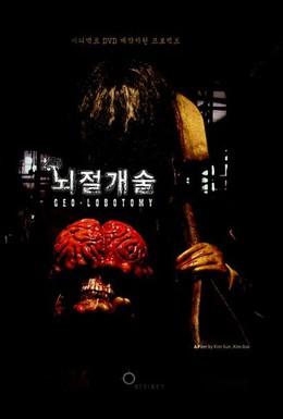 Постер фильма Лоботомия (2005)