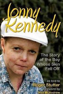Постер фильма Мальчик, который остался без кожи (2004)