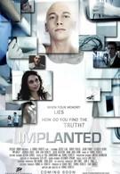 Имплант (2013)