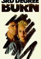 Ожог третьей степени (1989)