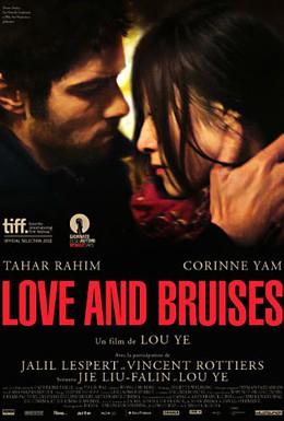 Постер фильма Любовь и ссадины (2011)